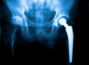 (Website Feature Image) Hip X Ray