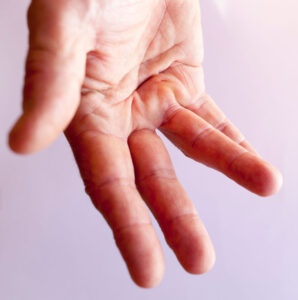 Dupuytren Contracture Doc Talk (FEATURE IMAGE)
